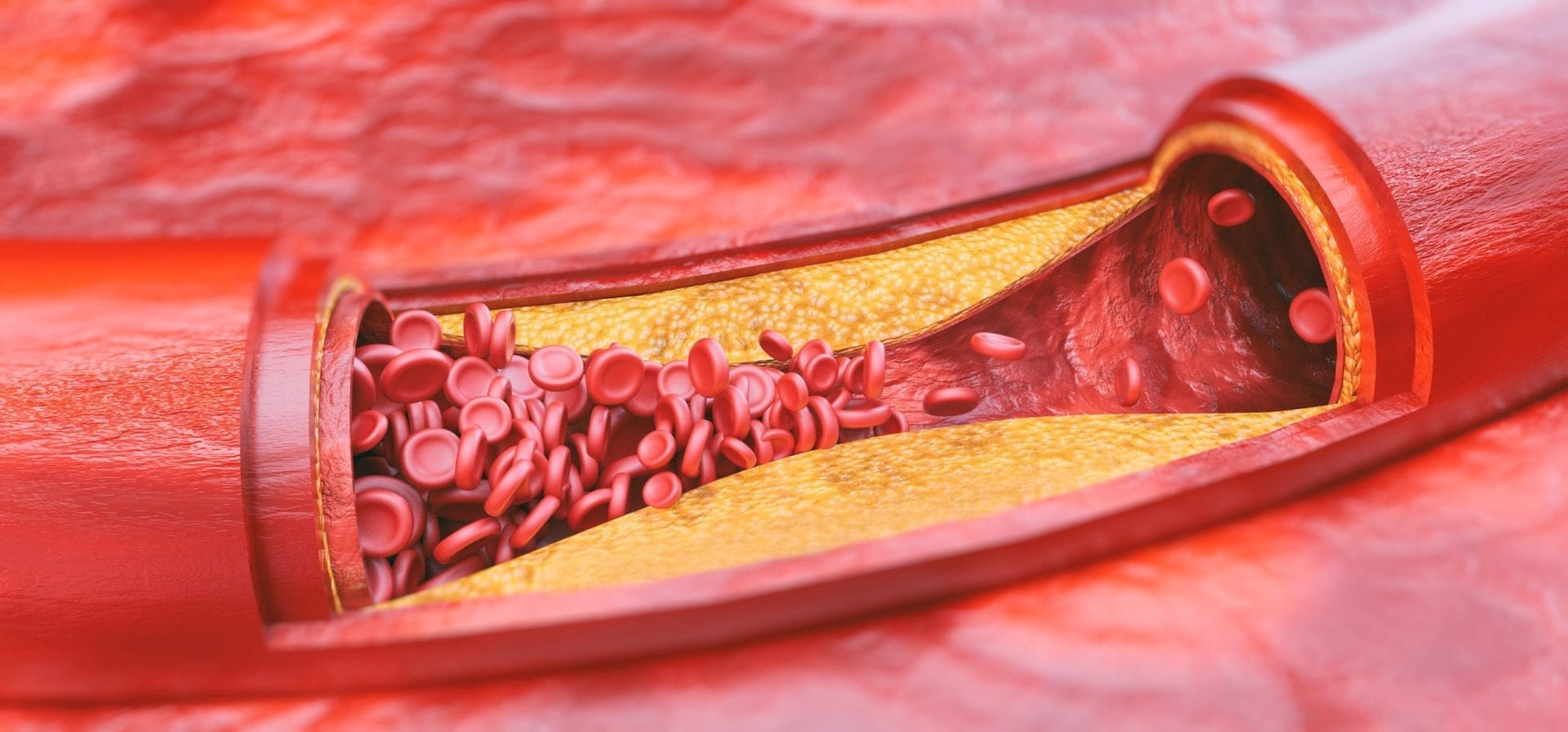 hdl and ldl cholesterol