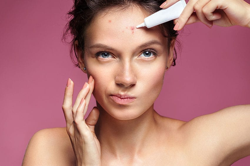 Keto Acne: Can the Ketogenic Diet Cause Acne?