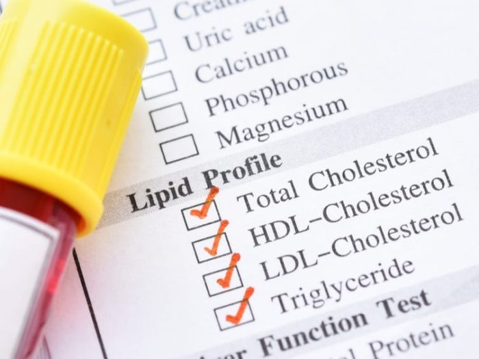 high cholesterol on keto