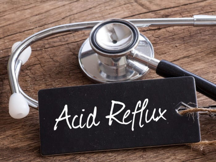 acid reflux and keto